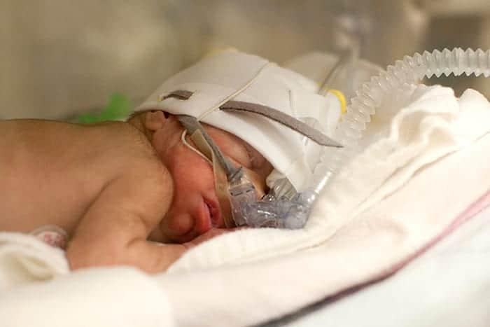 CPAP (Continuous Positive Air Pressure) en Infant Flow